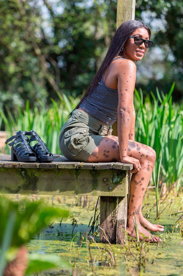 Dalmaçyalı Kadın Cheryl Shaw'ın Hayat Hikayesi